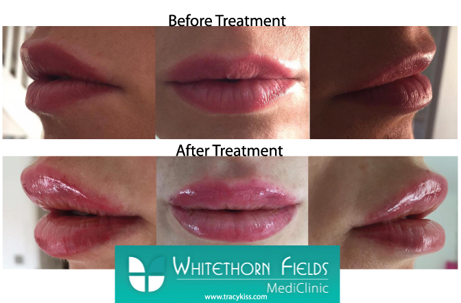 Tracy Kiss Before & After Lip Filler Treatment At Whitethorn Fields Mediclinic